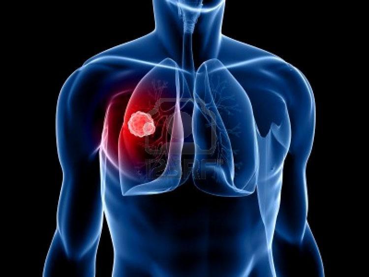 Английские ученые нашли новый метод диагностики рака легких на ранней стадии