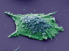 Клетка рака лёгких.