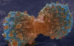 Ученые: большинство видов рака — дело случая