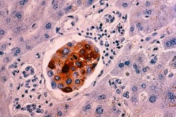 breast cancer cells metastasized to the liver --- Image by © Callista Images/cultura/Corbis