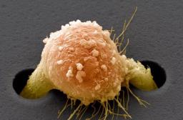 Неправильная миграция клеток вызывает ра