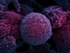 Неправильная миграция клеток — главная причина развития рака