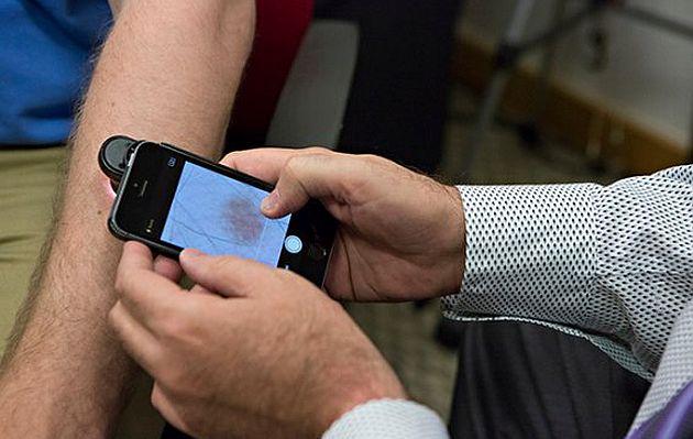 Приложение DermoScan для iPhone способно диагностировать раннюю стадию рака кожи