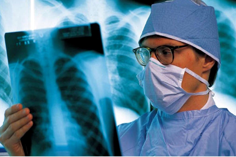 ОРЗ повышает риск заболевания раком легких