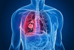Новый метод диагностики рака легких