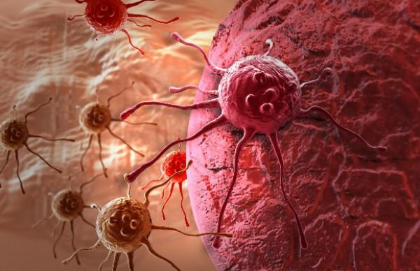 Интересный факт дня: Рак может «спать» в организме 20 лет