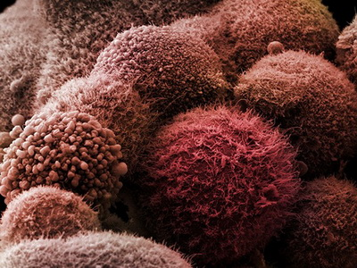 Уровень в крови некоторых аминокислот указывает на начало злокачественных процессов в организме за несколько лет до того, как опухоль проявит себя.