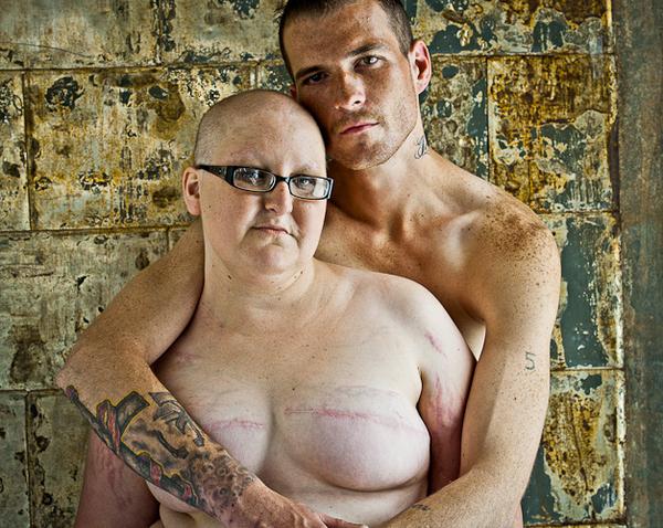 Проект о раке груди у женщин